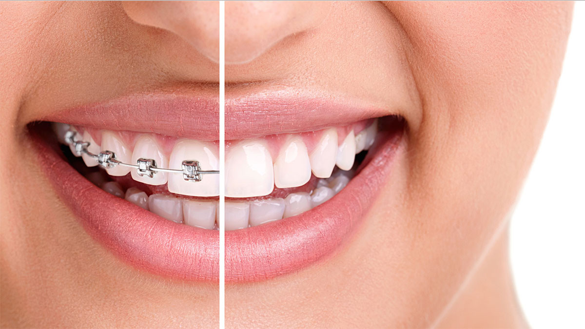 ortodoncija-2