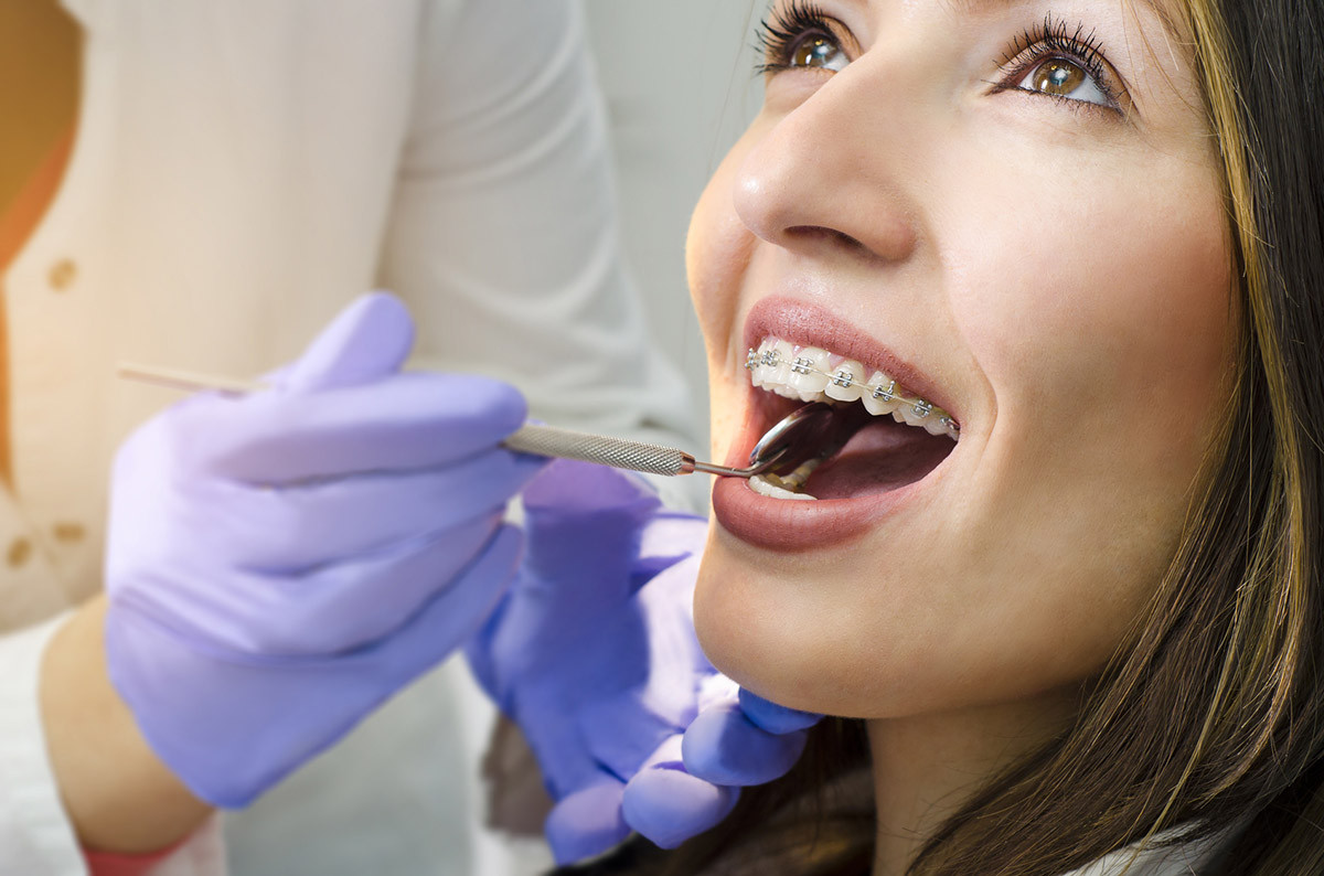 Closeup of beautiful girl on dental braces check up